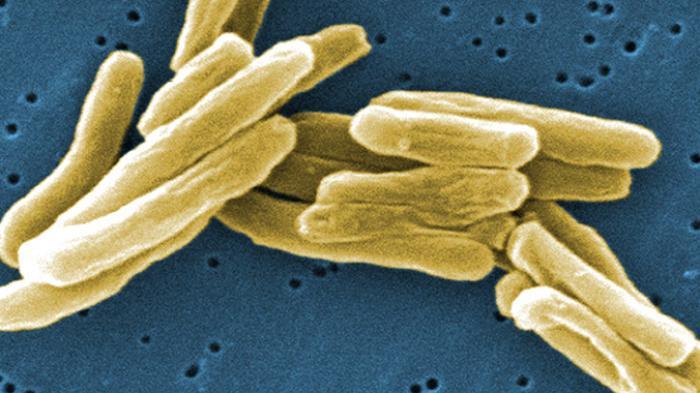 Penderita Tuberkulosis di Ukraina Masih Tinggi, Termasuk Tipe yang Kebal Obat